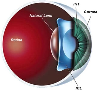 Services Cataract Surgery Eye Check Lasik Surgery In
